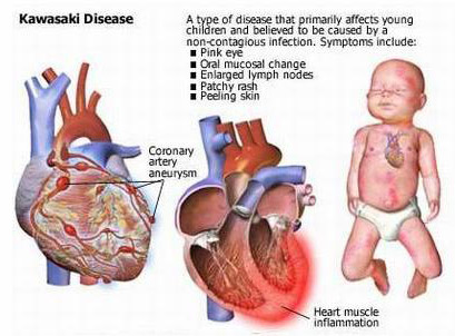 What Is Kawasaki Disease In Children